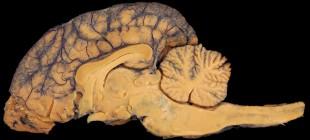 """Gerçeklik Algımız Ve Halüsinasyon Beyindeki Bir """"Kıvrıma"""" Mı Bağlı?"""