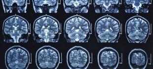 Kendi Beynini İnceleyen Bilim İnsanının İlginç Bulguları