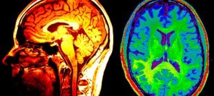 Beyninizin Karanlık Yüzüyle Tanışın: Hayalet Uzuvlar