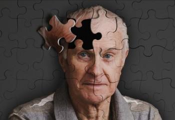 Modern Zaman Hastalıklarından Alzheimer