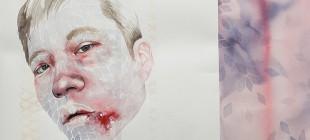 Psikolojik Rahatsızlıkların Sanata Yansıması