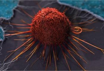 Normal Bir Hücre Nasıl Kanser Hücresine Dönüşür?