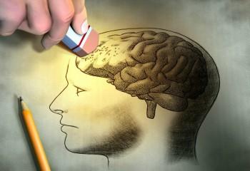 Yapay Zekâ İle Alzheimer Teşhisinde Yeni Bir Adım