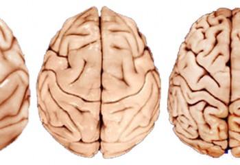 Beynin Evrimi Üzerine Düşüncelerin Tarihi I: Giriş