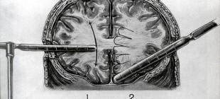 İlkel Metotlarla Nobel Ödülü Kazandıran Bir Tedavi Yöntemi: Lobotomi
