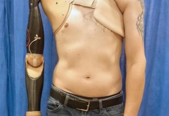 Omurilik Sinir Sinyallerini Algılayabilen Protez Kol
